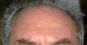 łysienie androgenowe lub plackowate